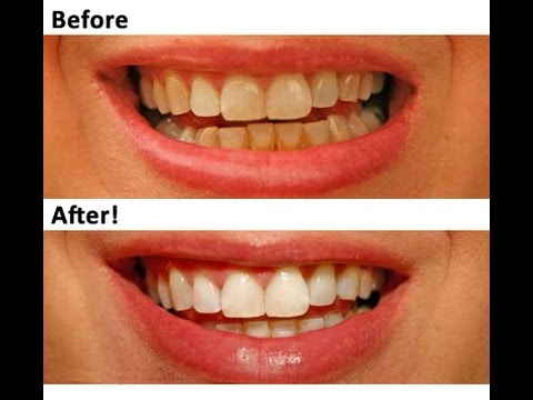 Teeth Whitening The Practice Of Wrapping Teeth With Aluminium Foil